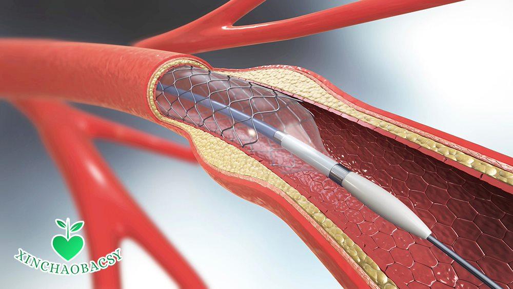 Đặt stent mạch vành và những điều bạn cần biết trước khi can thiệp